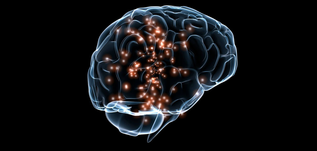 Photo of Darpa Funding Research on Brain-Digital Implants